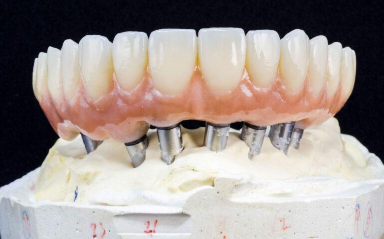 protesi fissa su impianto dentale lonigo