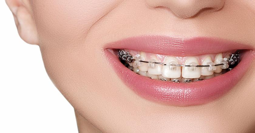 Apparecchio Ortodontico Fisso Lonigo