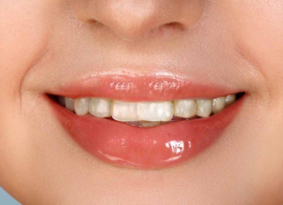 sbiancatura denti lonigo