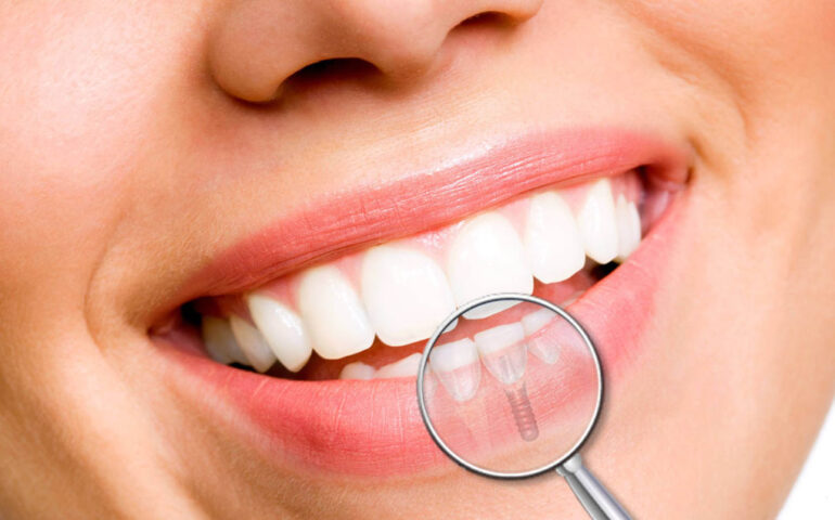 implantologia dentale lonigo